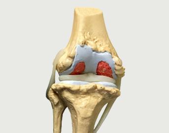 Pokročilá fáze artrózy