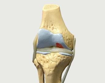 První příznaky artrózy